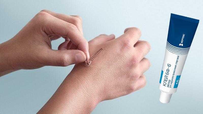 Экстренный препарат блокатор ран и порезов фото